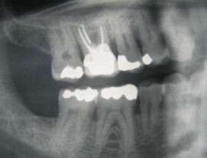 Foyers infectieux dentaires et leurs complications