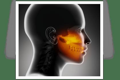 Limitation de l'ouverture de la bouche