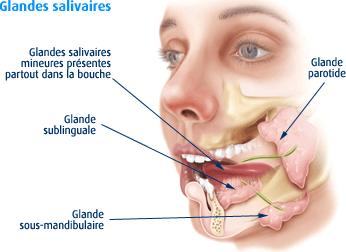 Lithiase salivaire