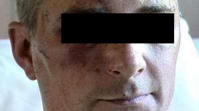 Traumatismes de la face