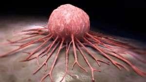 Dysembryogénèses et tumeurs dysembryoplasiques