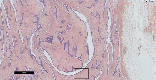 Tumeurs bénignes épithéliales et conjonctives