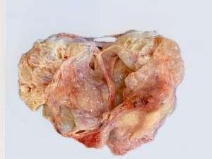 Tumeurs : caractères généraux