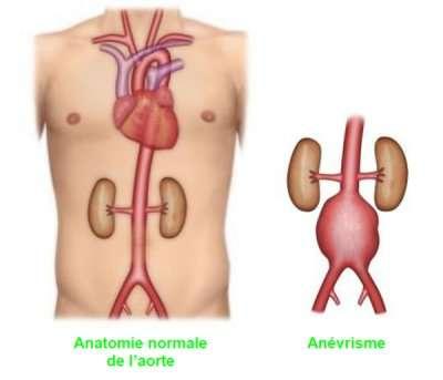 Anévrysmes de l'aorte thoracique et dissections aortiques chroniques