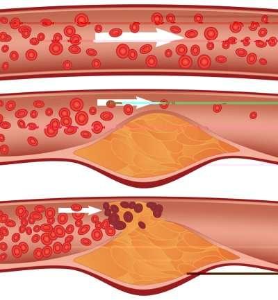evolution ectasie artère iliaque