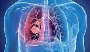 Complications vasculaires des affections hématologiques