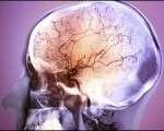 Conséquences vasculaires des traitements cardiologiques