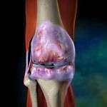 Coxopathies chroniques de l'adulte : diagnostic et traitement