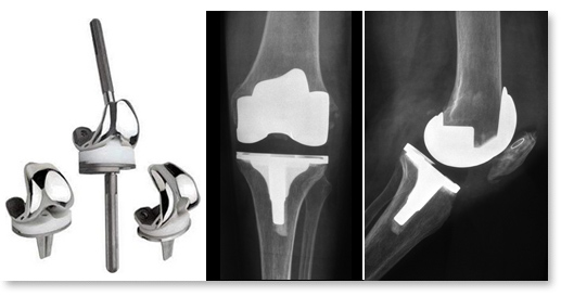 Diagnostic et conduite à tenir devant une prothèse de genou douloureuse
