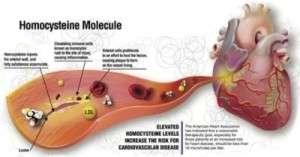 Hyperhomocystéinémie