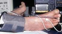 Mesures de la pression transcutanée d'oxygène