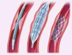 Techniques de revascularisation endovasculaire artérielles