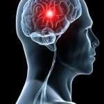 Stratégie de prise en charge des accidents ischémiques cérébraux