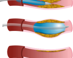 Techniques de revascularisation artérielle