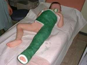Fracture de l extr mit sup rieure du f mur chez l enfant for Par la fenetre ouverte bonjour le jour
