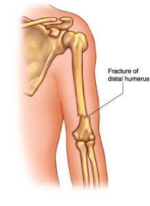 Fractures de l'extrémité supérieur de l'humérus
