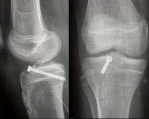 Fracture du genou