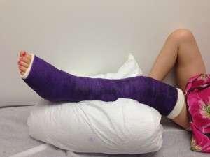 Fracture de jambe