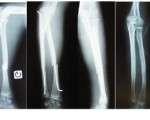 Fractures diaphysaires des deux os de l'avant-bras chez l'adulte