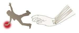 Fracture de l'extrémité inférieure du radius chez l'adulte