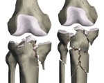 Fractures des plateaux tibiaux : fractures récentes