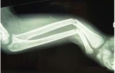 Fractures récentes de l'extrémité proximale des deux os de l'avant-bras de l'adulte