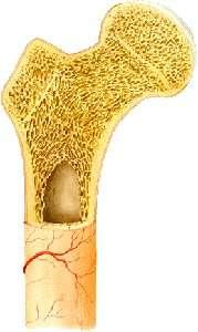 Fractures de l'extrémité supérieure du fémur chez l'adulte (Suite)