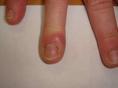 Infections de la main et des doigts