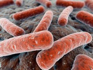 mycobacterial संक्रमण सिंड्रोम Mendelian संवेदनशीलता