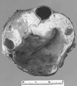 Tératomes matures bénins du médiastin