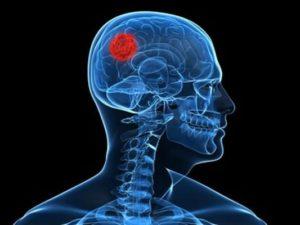 Abcès cérébraux et empyèmes intracrâniens