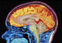 Manifestations psychiatriques des affections neurodégénératives : approche clinique et thérapeutique