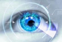 Agnosie visuelle