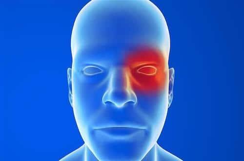 Algie vasculaire de la face