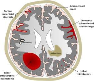 Angiopathies amyloïdes cérébrales