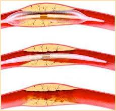 Place de l'angioplastie dans le territoire cérébral extra- et intracrânien