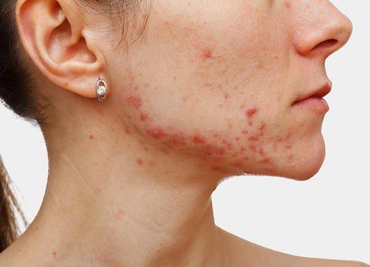 Antibiotiques en dermatologie