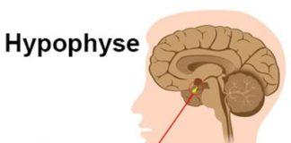 Aspects neurochirurgicaux des adénomes hypophysaires (Suite)