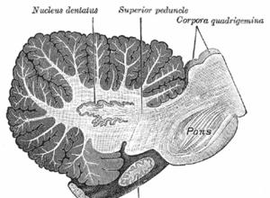 Atrophies (dégénérescences) cérébelleuses tardives (Suite)