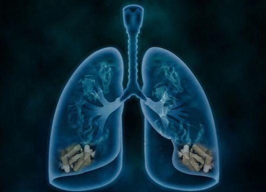 Bronchopneumopathies chroniques obstructives
