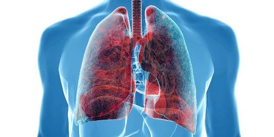 Cancer broncho-pulmonaire (cancer bronchique)