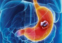 Cancers digestifs