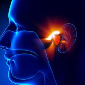 Cancer oto-rhino-laryngologique et chimiothérapie : état actuel et nouveautés