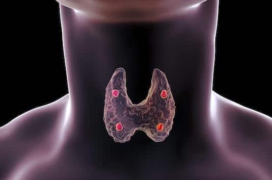 Cancer parathyroïdien