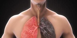Anatomie pathologique des cancers bronchopulmonaires (Suite)