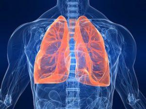 Anatomie pathologique des cancers bronchopulmonaires