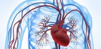 Cardiopathie coronarienne