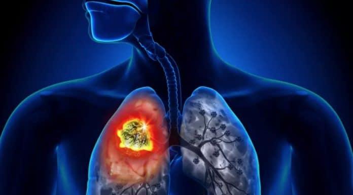 Techniques et indications chirurgicales dans le cancer bronchique (Suite)