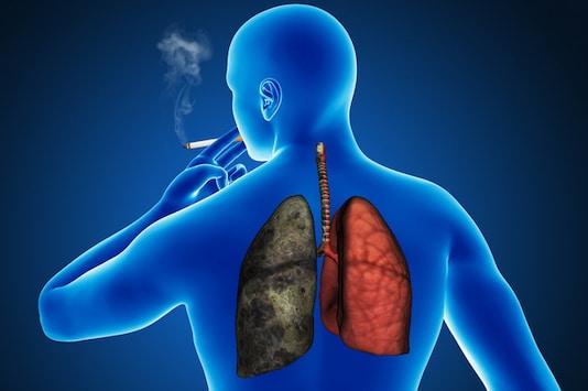 Techniques et indications chirurgicales dans le cancer bronchique
