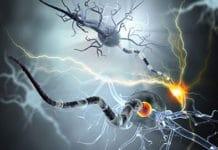 Aspects cliniques, physiopathologiques et thérapeutiques de la sclérose en plaques
